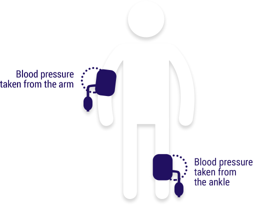 Stick figure with blood pressure sensors on the arm and ankle.